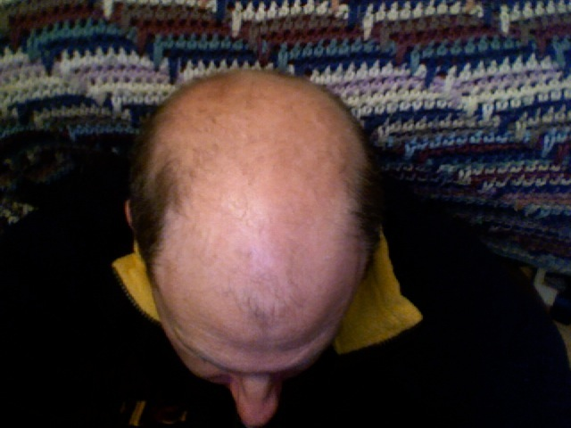 Greffe de-cheveux en Hongrie